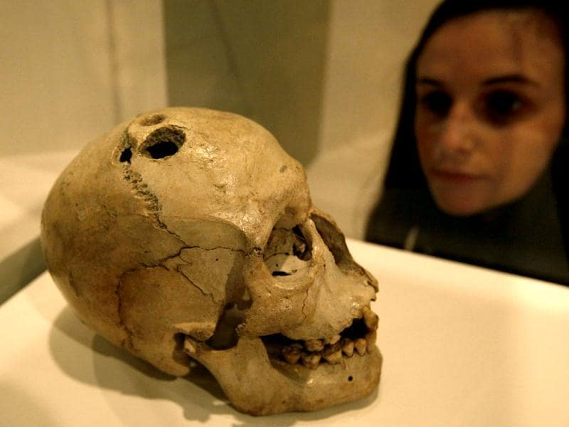 A Bronze Age skull from Jericho in the West Bank that shows four holes made by the ancient surgical process of trephination carried out to treat a range of medical conditions, some of which were believed to have been caused by evil spirits, is on display at the exhibition 'Brains -The Mind as Matter' at the Wellcome Collection in London. (AP Photo/Alastair Grant)