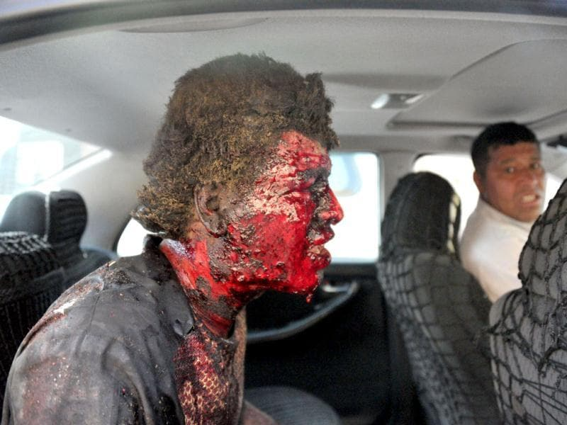 A survivor of a suicide bomb attack is evacuated in Kabul. Taliban insurgents claimed a suicide attack in the Afghan capital Kabul, shortly after US President Barack Obama left the city after an overnight visit. (AFP Photo)
