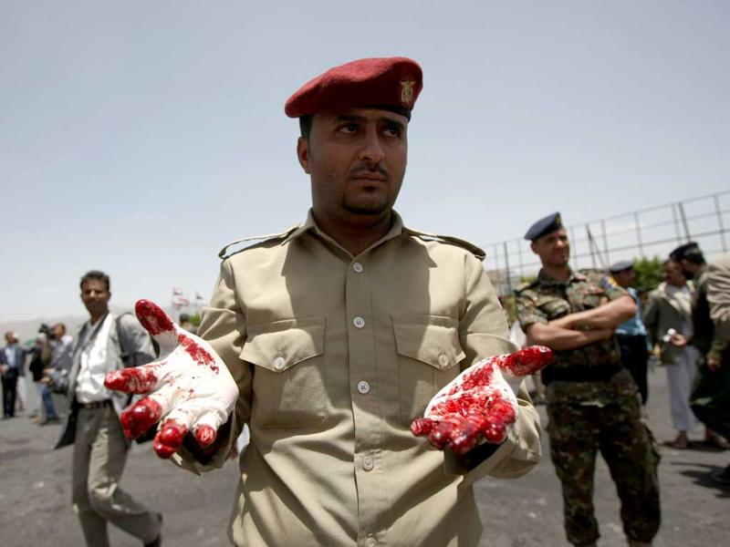 A Yemeni military policeman shows his bloodied gloves as he and colleagues collect evidence at the site of a suicide bomb attack in Sanaa. AFP/ Mohammed Huwais