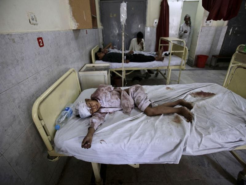 Pakistani boy Aqeel Arshae, 8, who was severely injured in a bus accident, lies in a bed at Benazir Bhutto hospital in Rawalpindi, Pakistan. AP/Muhammed Muheisen