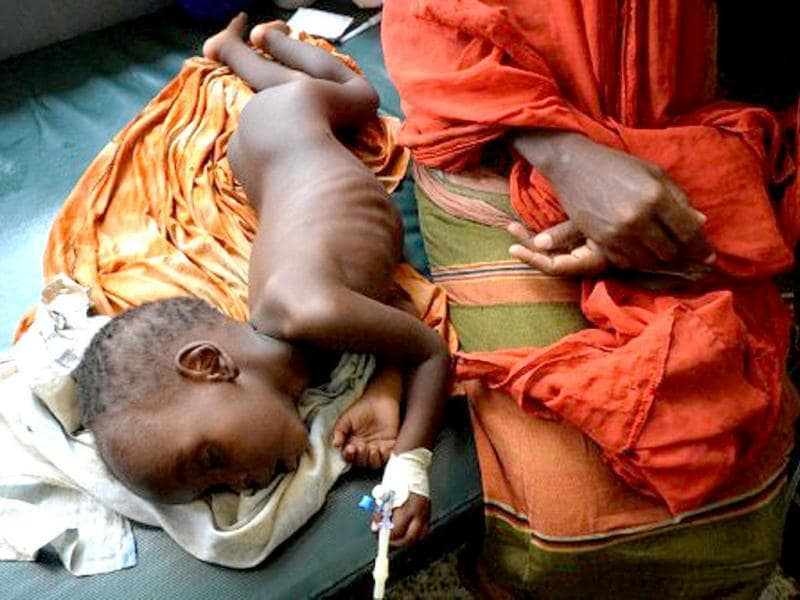 A Somali malnourished boy lies next to his mother as he receives treatment at the Banadir hospital in Mogadishu. Surging population growth is driving the planet towards food crunch, according to experts. AFP/Simon Maina