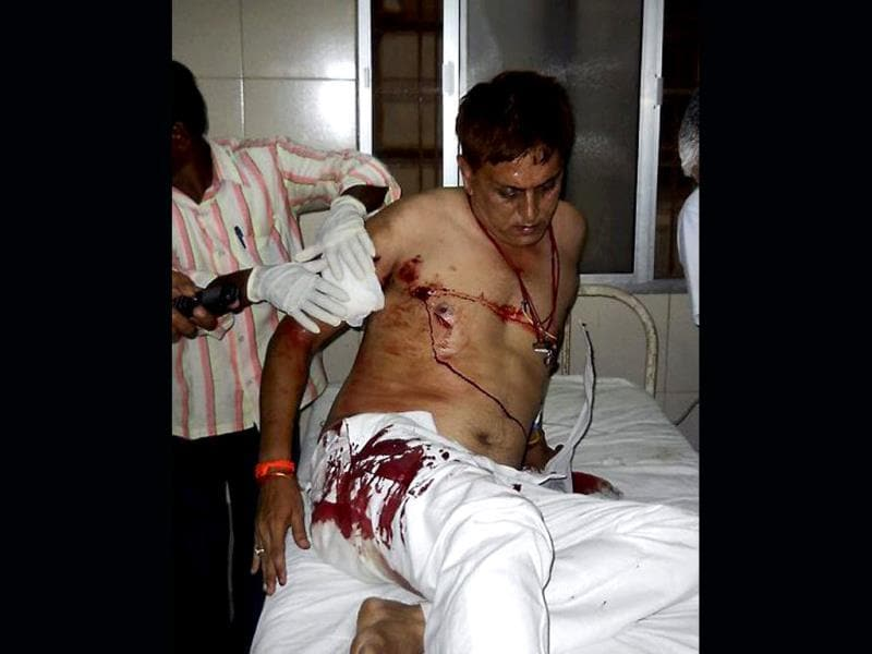 An injured being treated at Ramkrishna Hospital in Raipur after Naxal attack in Chhattisgarh on Saturday. PTI Photo