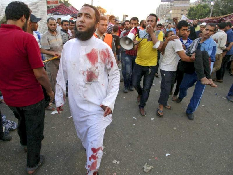 A blood-stained supporter of Egypt's ousted President Mohammed Morsi walks as others carry an injured man to a field hospital following clashes with security forces at Nasr City, where pro-Morsi protesters have held a weeks-long sit-in, in Cairo, Egypt, Saturday, July 27, 2013. (AP Photo)