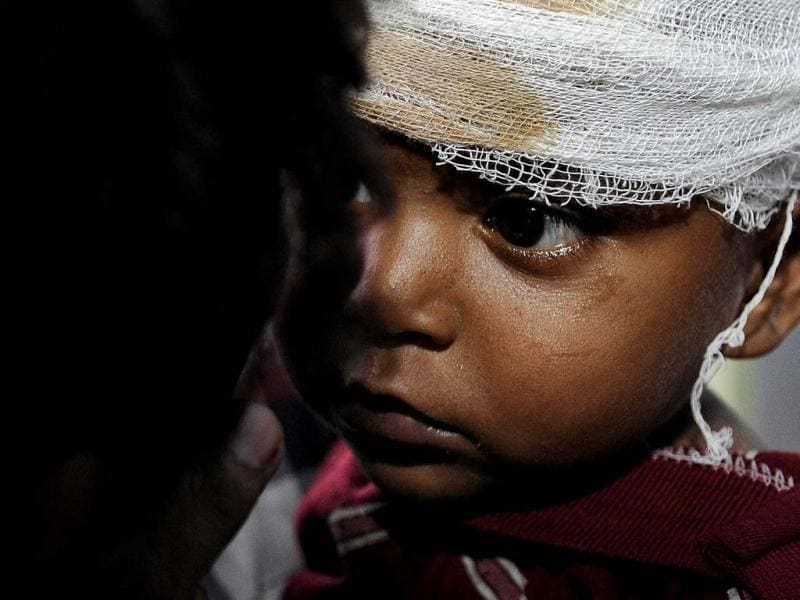 This picture shows an injured child in a district hospital who was hurt during the communal riots in Muzaffarnagar, Uttar Pradesh. Thousands fled their homes and took shelter in relief camps and many lost their lives in these riots. (HT Photo/Raj K Raj)