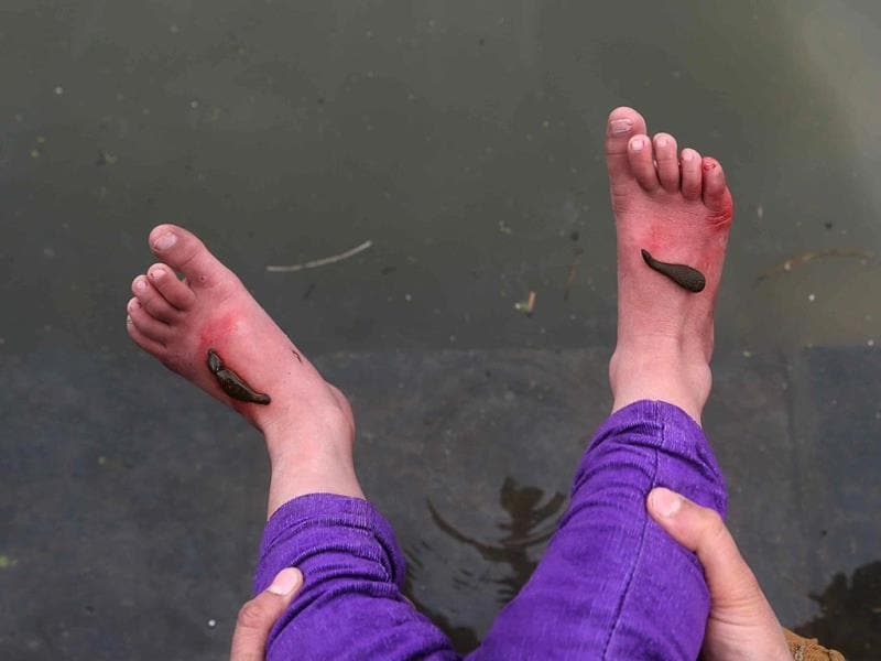 Leeches suck blood on the feet of a patient during a leech therapy session in Srinagar. (Waseem Andrabi/HT Photo)