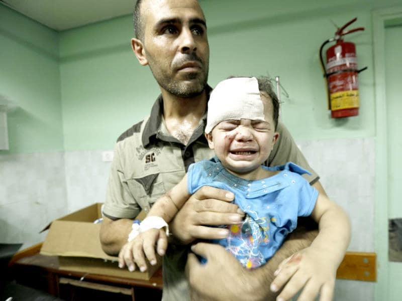 A Palestinian child, wounded in an Israeli strike on a compound housing a UN school in Jabalia refugee camp in the northern Gaza Strip, receives treatment at Kamal Edwan hospital in Beit Lahia. (AFP photo)