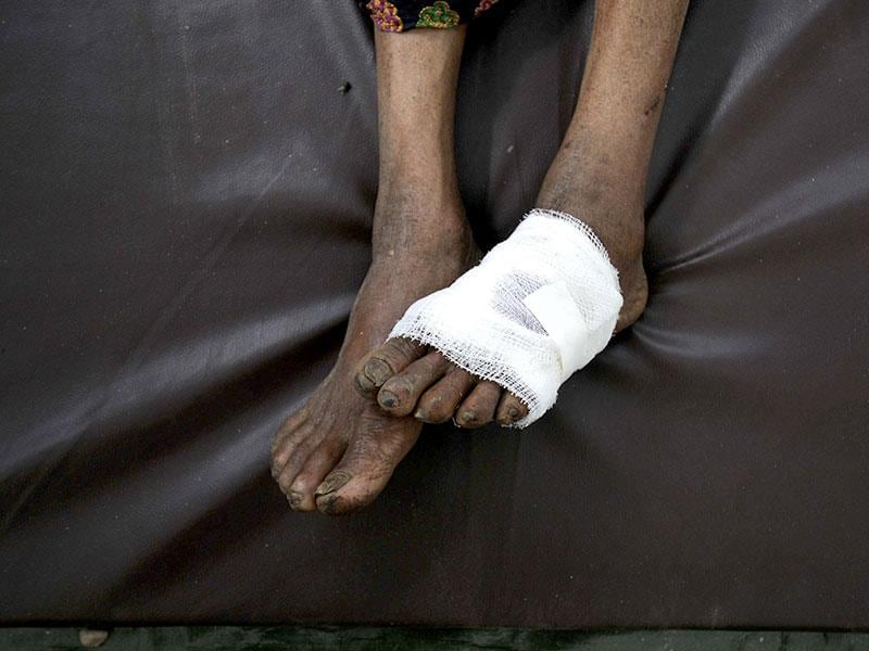 The wounded feet of a man after an earthquake hit Nepal. (Burhaan Kinu / HT Photo)