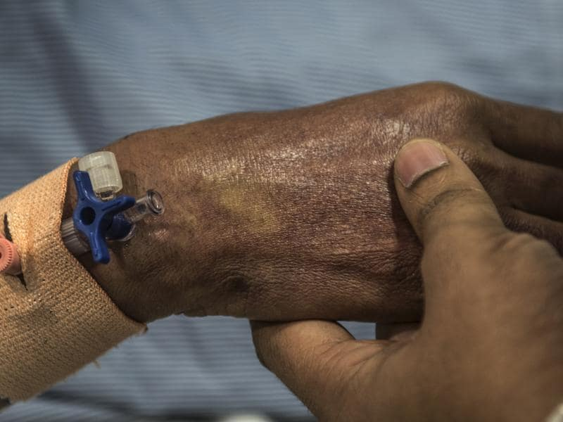 A dengue patient is treated at a Mumbai hospital. (Satish Bate/HT PHOTO)