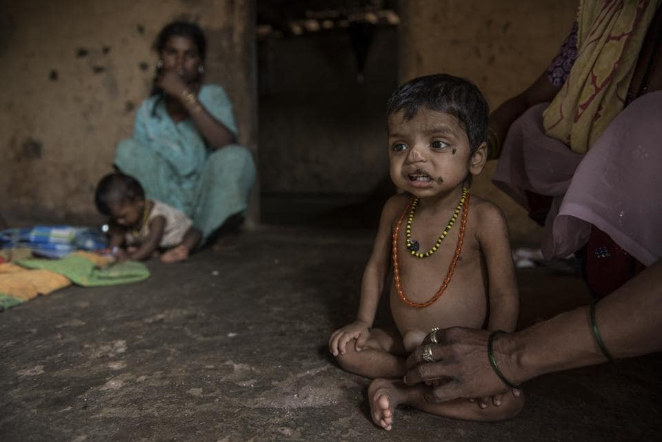 A child suffering from malnutrition in Bambi Pada, in the Palghar District, Maharashtra. Malnutrition is the reason behind 50% of all childhood deaths in India.