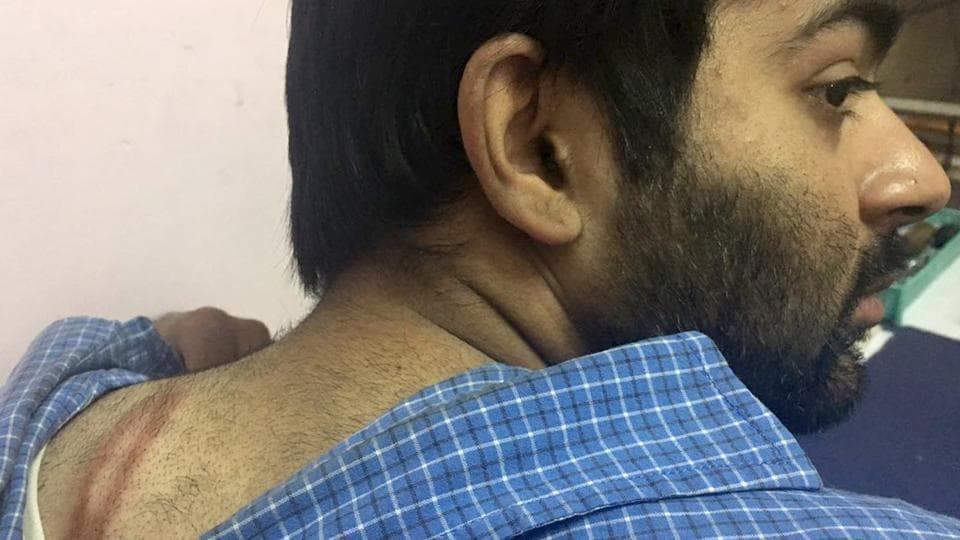 Chintesh Maini showing his injury marks after he was allegedly beaten up by a traffic police cop in Ludhiana on Tuesday.