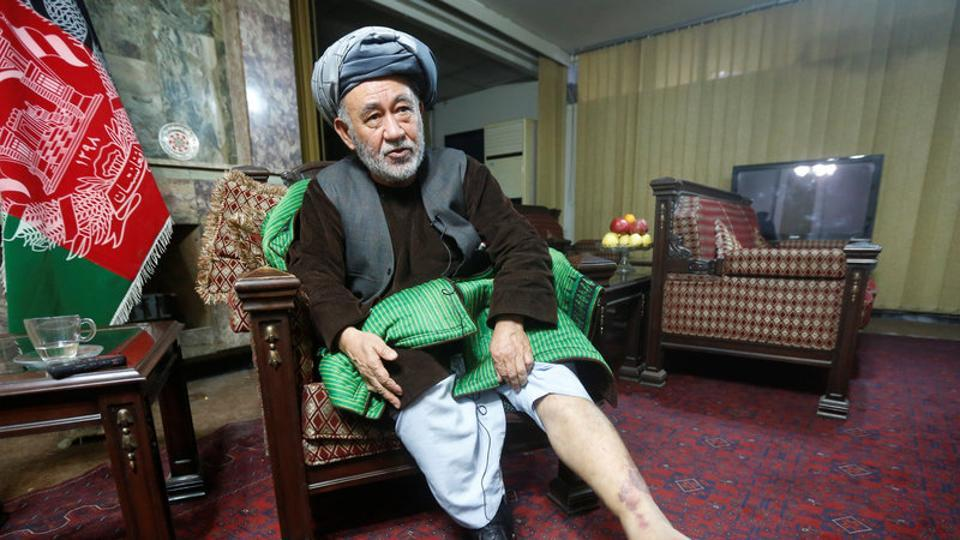 Ahmad Ishchi, who is reported to have been beaten and detained by Afghanistan's vice president Abdul Rashid Dostum last month, displays an injury on his leg.