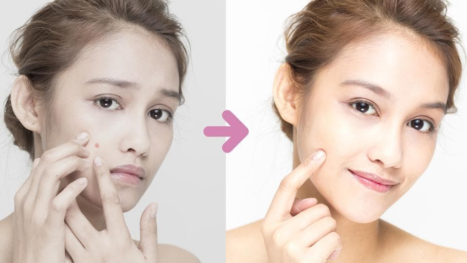 Squeezing acne leads to further inflammation, making the situation even worse. Use Benzoyl Peroxide or Salicylic acid face wash with a balanced PH. It will help control the spread. (Shutterstock)