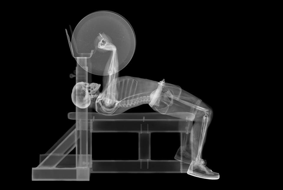 The Desk Jockey S Injury Guide Posture Problems Solved