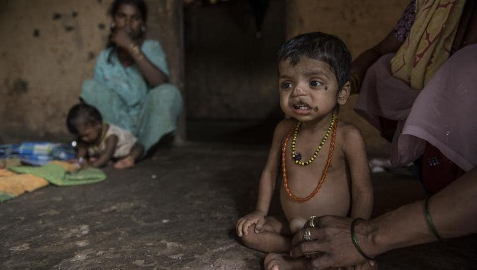 Three-year-old Manoj Pawar suffers from malnutrition at Bambi Pada, Jawahar, Palghar District. India is home to over 40 million stunted children under five, more than any other country in the world.