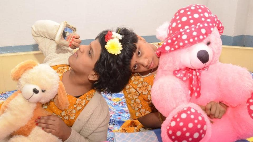 Cojoined twins in Hyderabad,Siamese twins,Vani and Veena