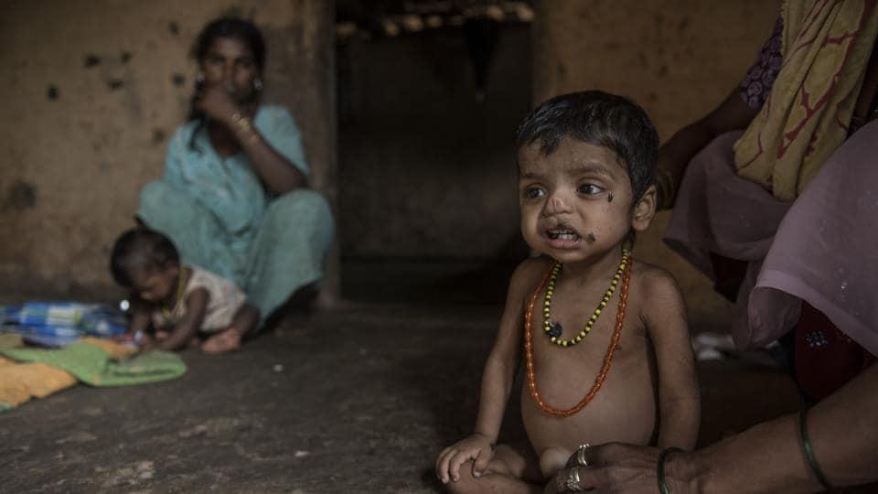 Migration,Palghar migration,Malnutrition