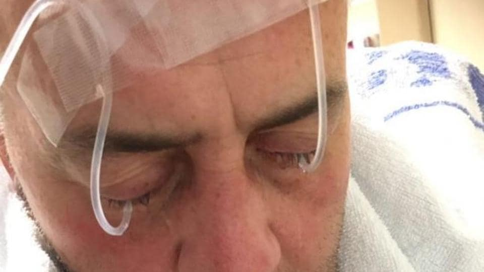 Customer David Evans in hospital after the chef at Prince of Bengal, a restaurant at Rhondda in south Wales that serves Indian cuisine, threw chilli power in his face.