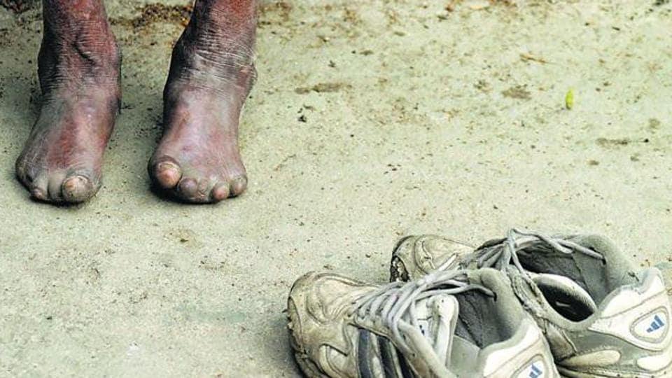 leprosy,India,World leprosy day