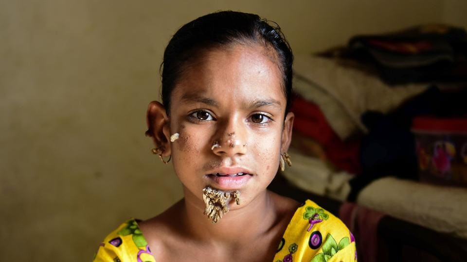 Bangladeshi patient Sahana Khatun, 10, could be the first female ever afflicted by so-called