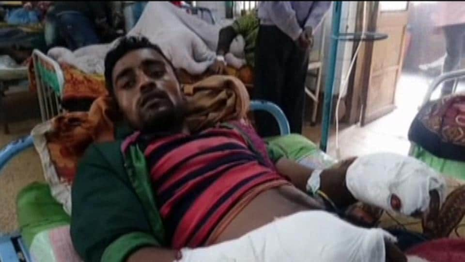 Ganesh Ghosh in a hospital in Malda after the amputation.