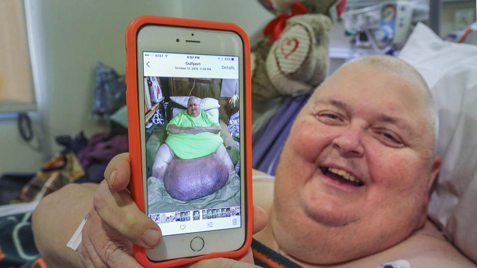 Roger Logan holds up a photo of him with a 130-pound tumour before his surgery at Bakersfield Memorial Hospital.