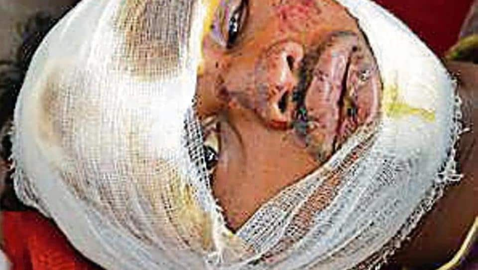 Viru Mohli whose wound stitched by doctors with cloth sewing thread now under treatment at PMCH in Dhanbad on Friday.