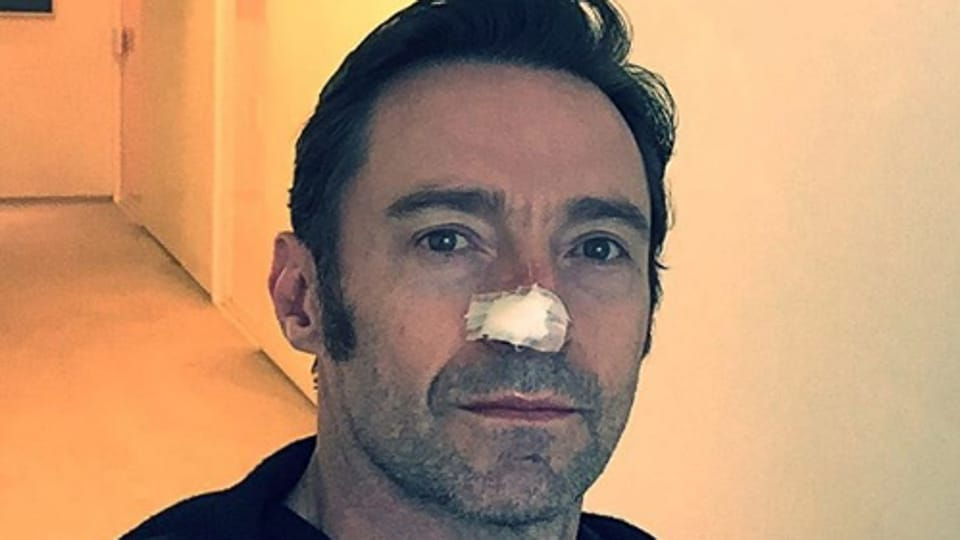 """""""Looks worse with the dressing on than off. I swear! #wearsunscreen,"""" said Hugh Jackman in his Instagram post."""