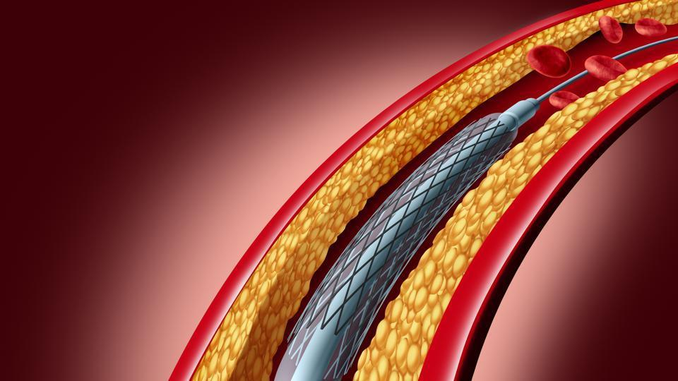 Biodegradable stents are the latest in its range that was introduced in India three years ago. It is made up of a material that breaks down in the artery and is eventually absorbed by the body.