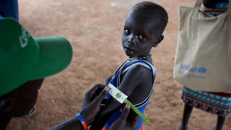 A boy has his arm measured to see if he is suffering from malnutrition during a nutritional assessment at an emergency medical facility supported by UNICEF in Kuach. (AP Photo)