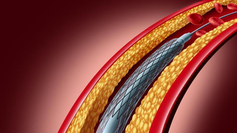 A stent is a tiny metal tube inserted into the narrowed coronary arteries