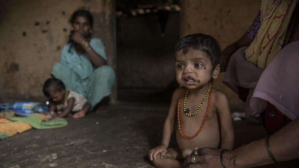 Three-year-old Manoj Pawar  from Bambi Pada, Jawahar, Palghar District, is suffering from malnutrition.  India is home to more than 184 million undernourished people.