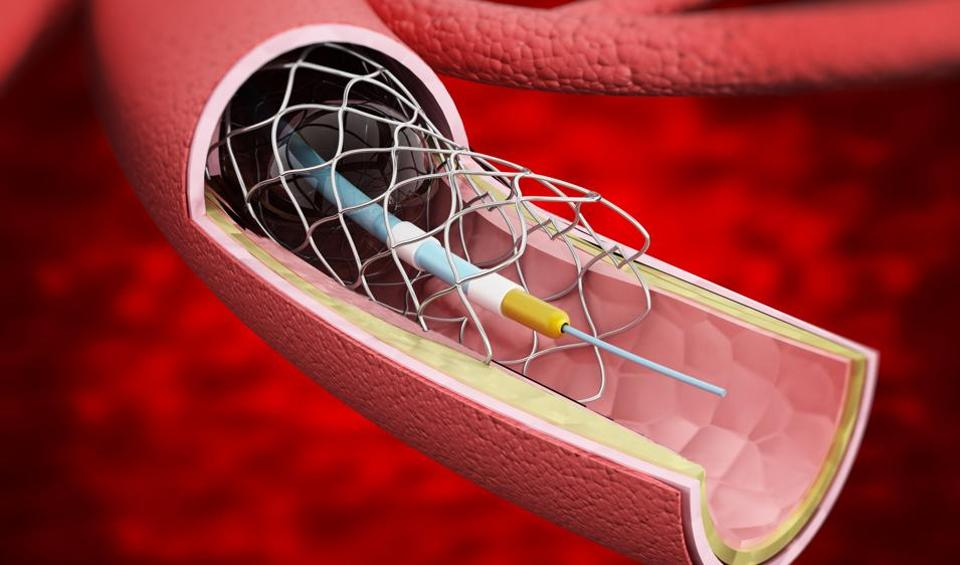 Stents,PIL,Drugs and Cosmetics Act