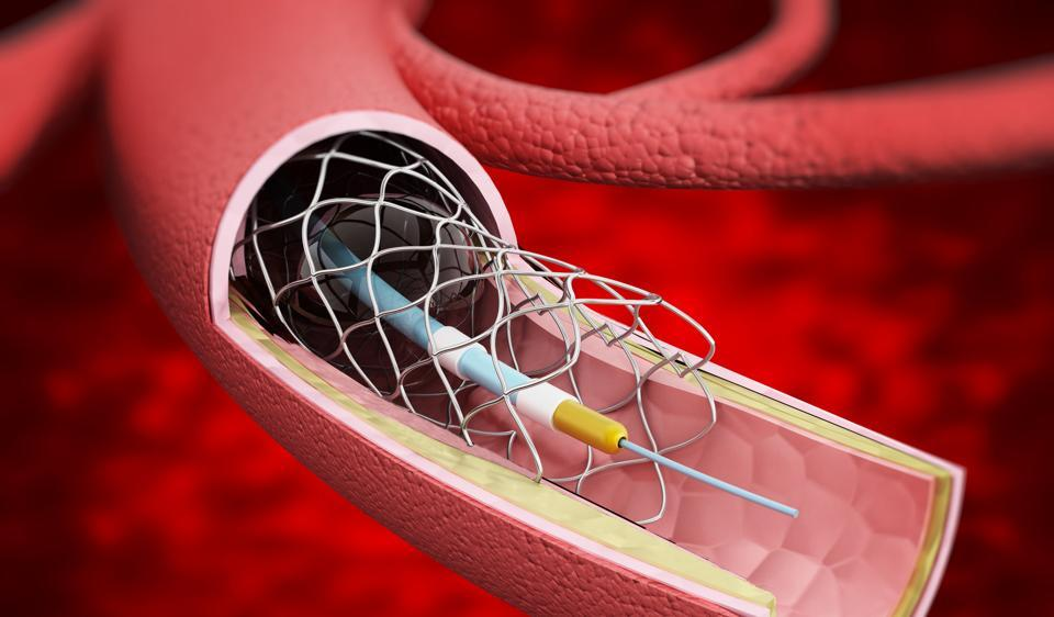 Detailed illustration showing vascular stent inside the vein.