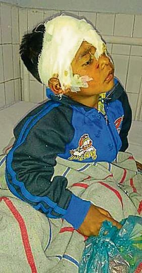 Injured Karandeep Singh getting treatment at civil hospital in Tarn Taran on Thursday.