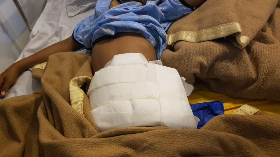 A 9-year-old had to undergo stomach surgery at a private hospital in Manesar after a Rottweiler dog attacked her, puncturing her stomach and large intestines.