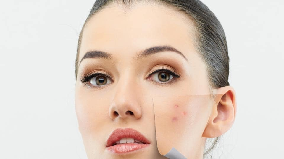The most common problem associated with cell phones is acne. Your phone is a hot bed of germs and dust that can cause acne.