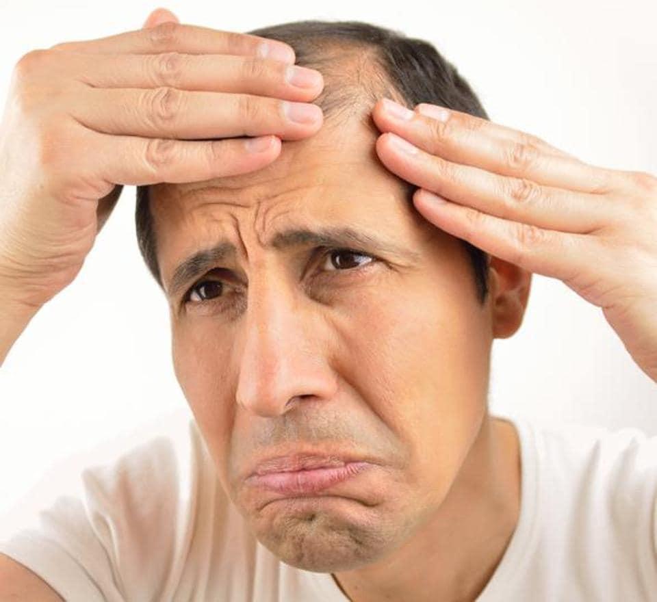 Premature Baldness,Hair Loss,Hair Fall