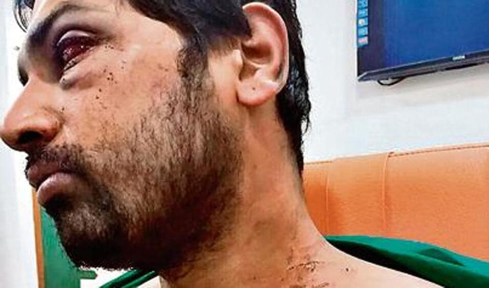 Dr Rohan Mhamunkar, a senior doctor at the Dhule civil Hospital, was assaulted by 15 to 20 relatives of a patient after he requested the family to shift the patient to another hospital owing to unavailability of a neurologist.