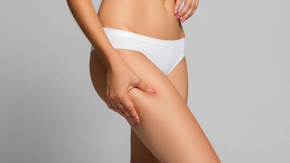 Cellulite is persistent subcutaneous fat which causes dimples in the skin, especially on women's hips and thighs.