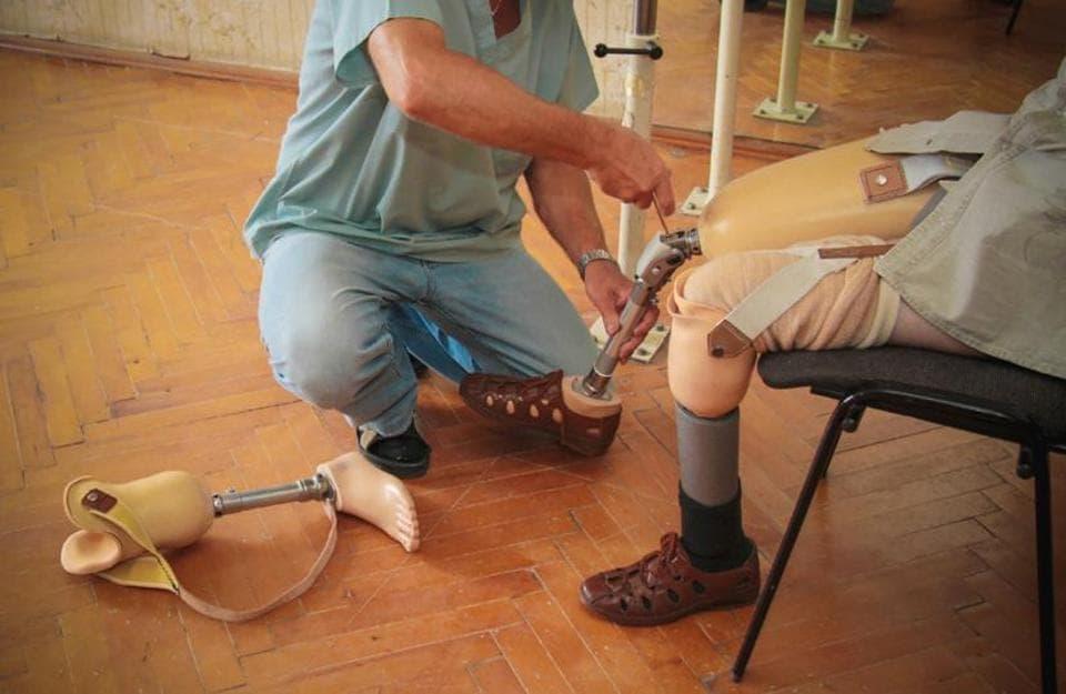 Prosthetic Limbs,Energy Saving Prosthetic Limbs,Amputee