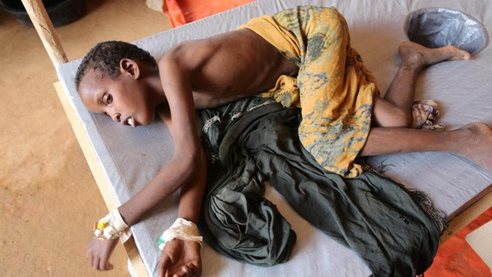 An internally displaced Somali child who fled from drought stricken regions receives treatment at a hospital's diarrhoea ward in Baidoa. The new patients, mostly children, show signs of chronic malnourishment when they arrive at therapeutic clinics run by UNICEF, said aid workers. (Feisal Omar/REUTERS)