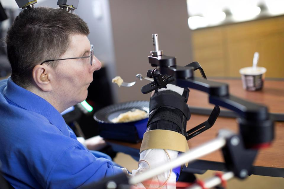 Bill Kochevar is using computer-brain interface technology and an electrical stimulation system to move his own arm after eight years of paralysis.