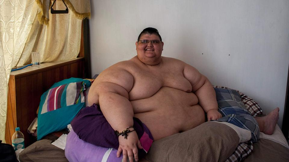 Mexican 32-year-old Juan Pedro Franco answers questions during a press conference in Guadalajara, Mexico on March 28, 2017. Franco was the most obese man in the world, but four months ago he underwent a treatment and managed to lose 170 kg. On a second stage he will undergo a surgery that will allow him to walk again.