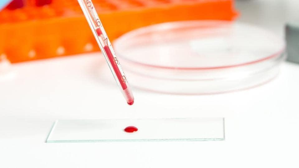 Cancer tests
