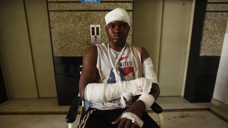 One of the injured African nationals admitted in a hospital after the violence in Greater Noida.