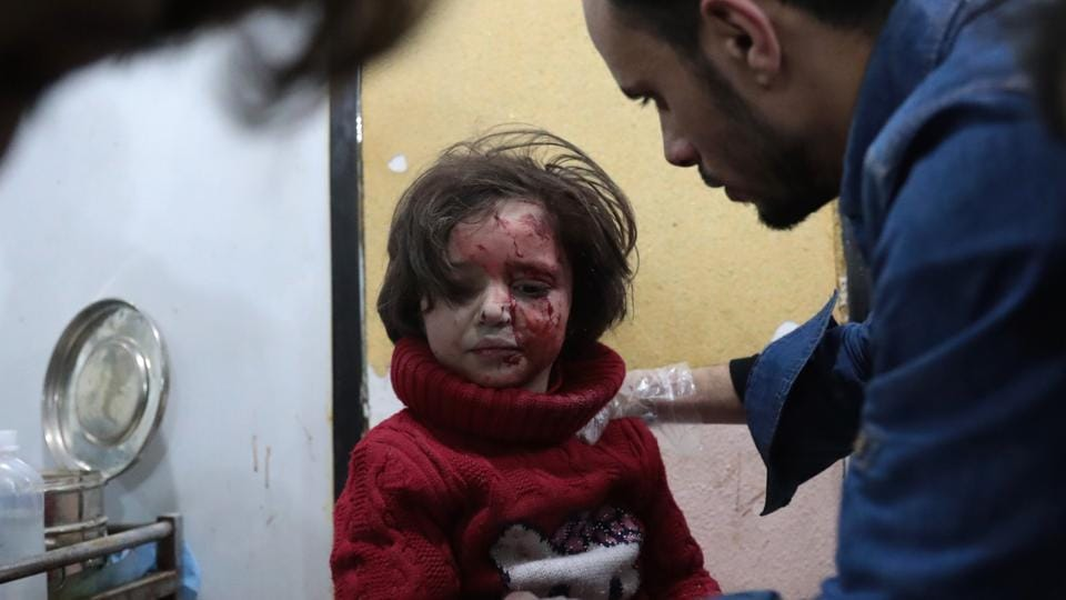 A Syrian girl receives treatment at a makeshift clinic following reported air strikes by government forces in the rebel-held town of Douma.