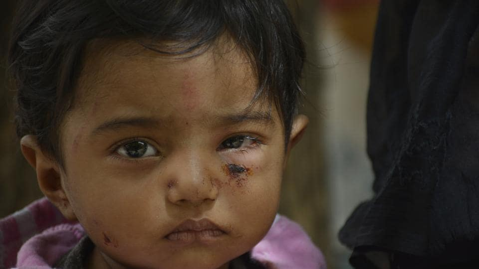 One-year-old Mayank suffered dog bites on his face, while his grandmother got bitten on the hand. Several locals chased the dog away and beat it up.