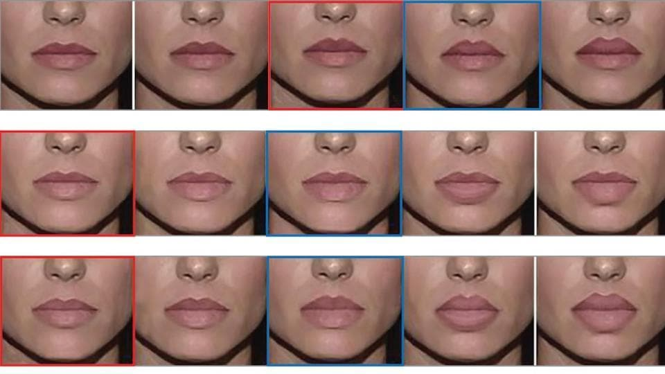 Lip job,Journal of the American Medical Association,Determining the 2-Dimensional Threshold for Perception of Artificial-Appearing Lips