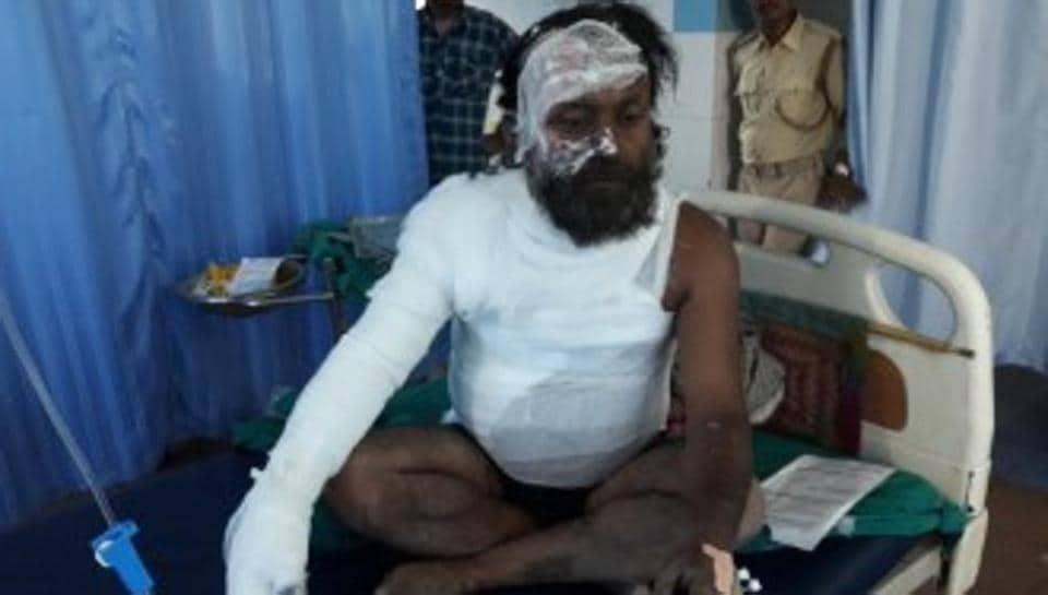 Motihari,immolation bid,burn injuries