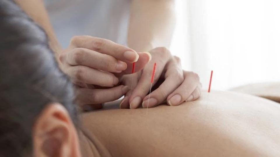 Dry needling uses filament needles.